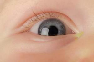 Гноится глаз у грудничка