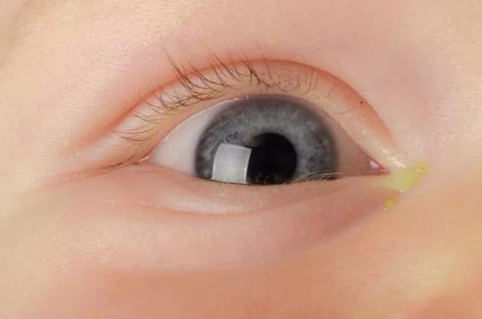 Закисают глазки у новорожденного почему