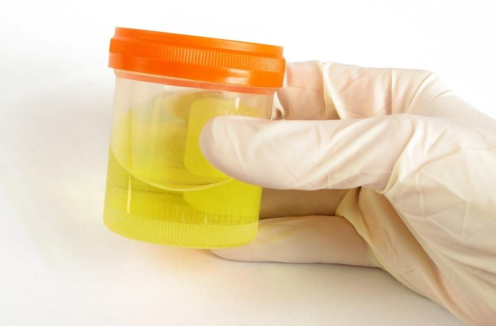 Сколько миллилитров мочи нужно собрать для анализа грудному ребенку медицинская справка 0-46 тушинская