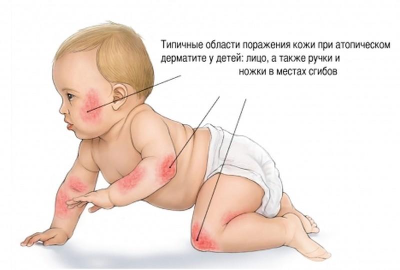 атопический дерматит у детей фото лечение комаровский