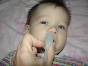 Кровь из носа у малыша при отсасывании соплей thumbnail